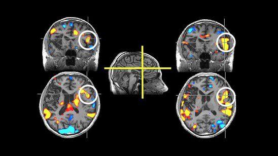 Sean Maloney stroke brainscan