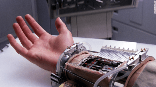 Luke's artificial hand being attached in Empire Strikes Back.